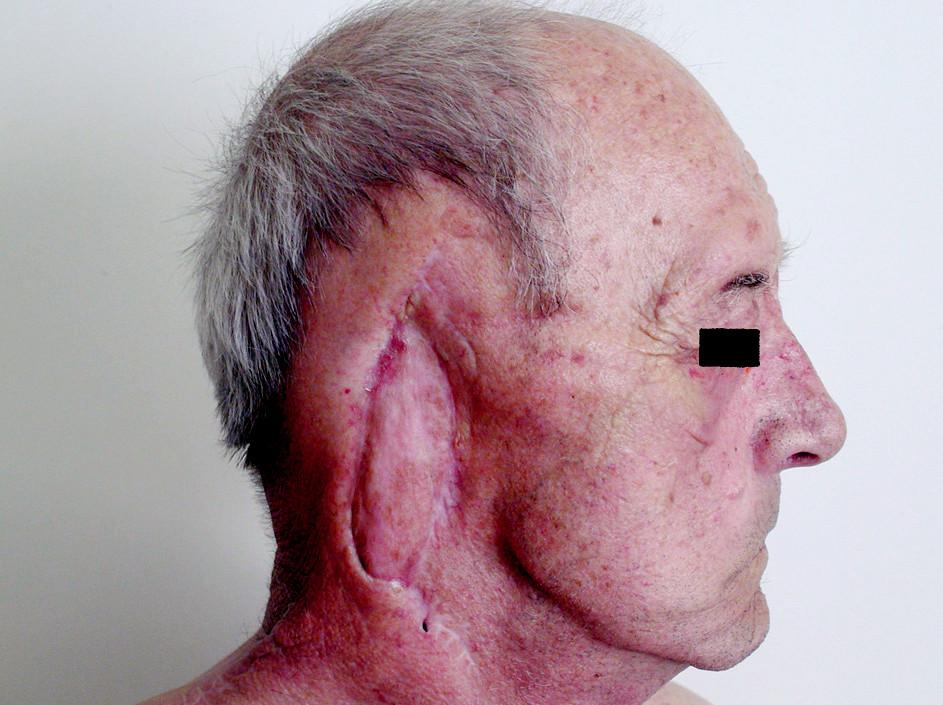 Kazuistika 2. 75-ročný pacient štyri mesiace po rekonštrukcii poooperačného defektu dolným myokutánnym lalokom z m. trapezius.