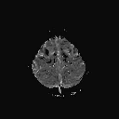 a) FLAIR. b) DWI. c) ADC mapy – normální nálezy. d) PWI – hypoperfuze frontálně bilaterálně.