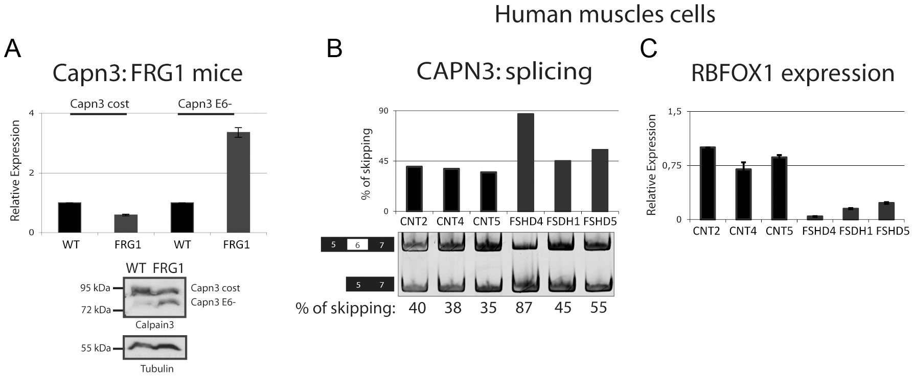 Alternative splicing isoform of <i>Calpain 3</i> increased in <i>FRG1</i> mice and in FSHD patients.