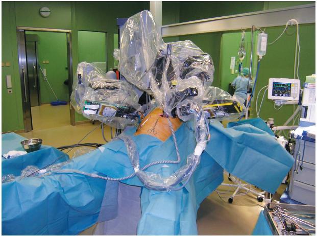 Robotická ramena s nástroji při operaci Fig. 1: The robotic arms with instruments