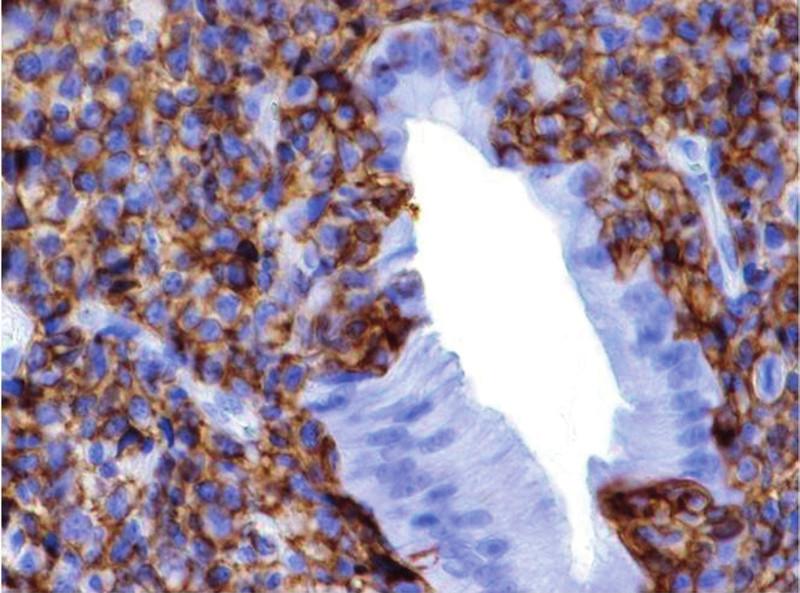 Obr. 2a, b MALT lymfom žaludku, lymfoepiteliální léze (barvení na CD20).