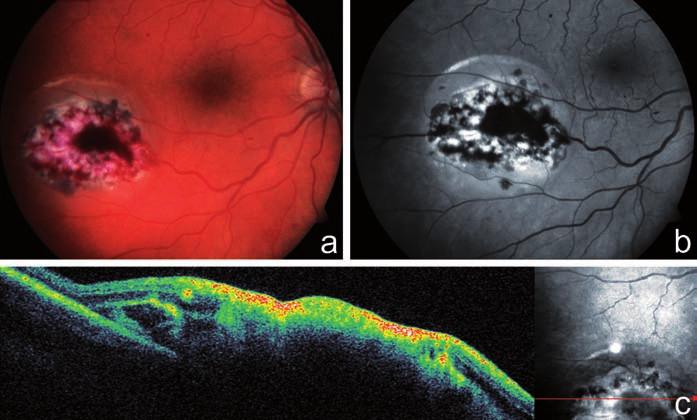 Klinický nález u pacienta z kazuistiky 3. Na fotografii fundu pravého oka u 31letého pacienta po 2 transplantacích kostní dřeně pro akutní myeloidní leukémii je patrné ohraničené bělavé ložisko infiltrované sítnice s hemoragiemi, v bezprostředním okolí ložiska nahoře malá exsudativní amoce sítnice a, b), vertikální scan SD-OCT ložiskem CMV retinitidy dokumentuje destrukci všech vrstev sítnice c)