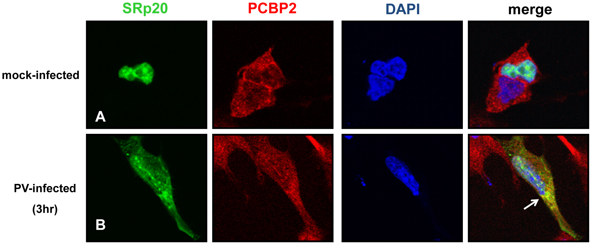 SRp20 partial co-localization with PCBP2 in the cytoplasm of poliovirus-infected SK-N-SH cells.