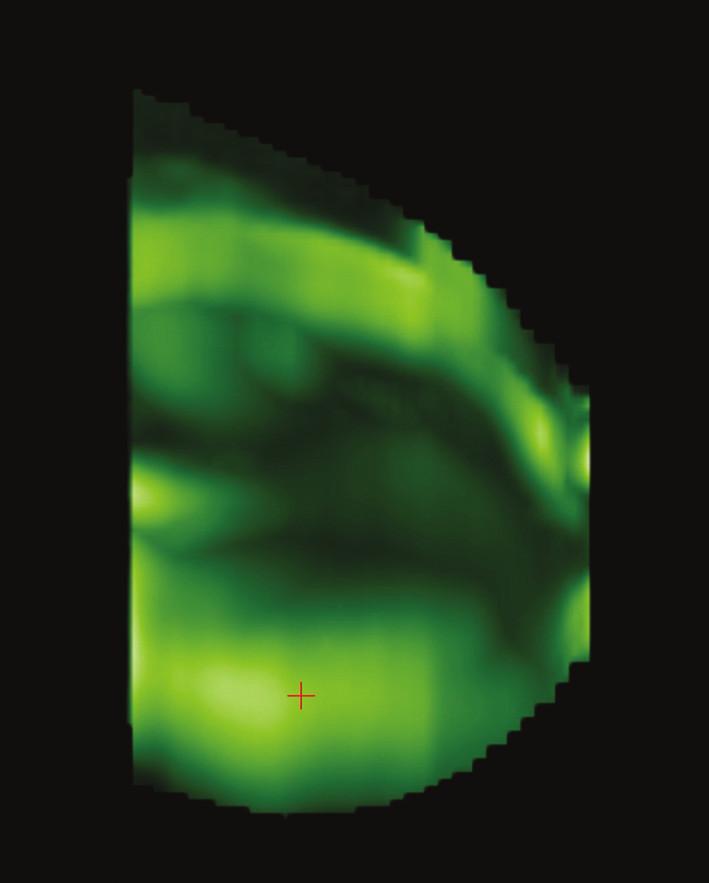 CTLM vyšetření, v dolní části levého prsu je patrná oblast rozsáhlé neovaskularizace označena křížkem