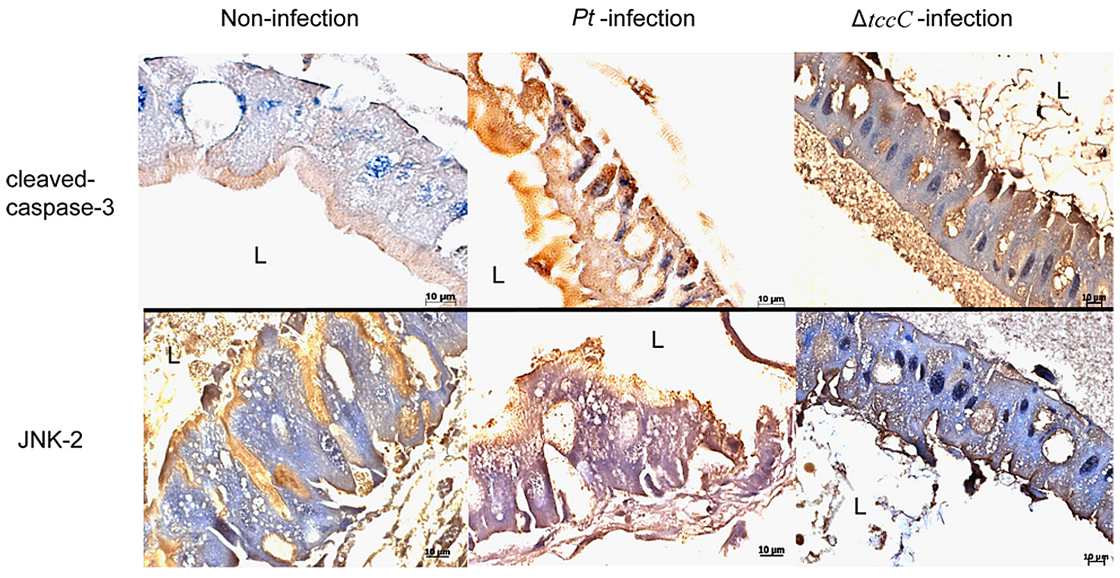Immunohistochemical analysis of cleaved-caspase-3 and JNK-2 protein expression level in the gut tissue of <i>P. xylostella</i> larva.