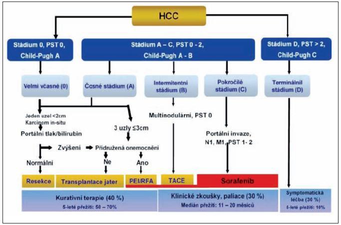 Skórovací systém BCLC (Barcelona Ckinic Liver Cancer) – rozhodující pro algoritmus terapie