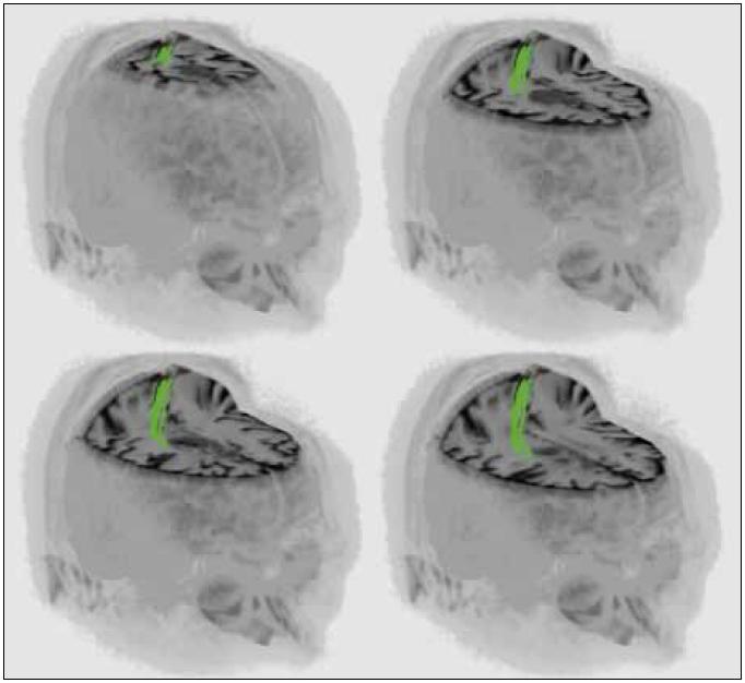 3D rekonstrukce MR vyšetření jednoho z pacientů (muž, 34 let, histologicky anaplastický astrocytom) s intraaxiálním tumorem v blízkosti kortikospinální dráhy.