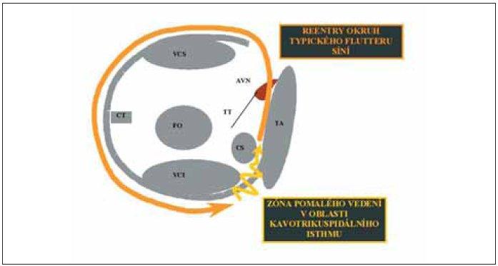 Patofyziologie typického flutteru síní. Na obrázku vidíme pohled do pravé síně z laterální strany (pravá šikmá rentgenová projekce). Plnou šipkou je znázorněn okruh reentry u typického flutteru síní a klikatou šipkou zóna pomalého vedení v oblasti kavotrikuspidálního istmu.