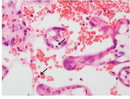 <b>Fetomaternální hemoragie</b>. Placenta z 35. týdne gravidity, porod akutním císařským řezem pro hrozící hypoxii plodu. Porozen mrtvý plod, při pitvě pouze absence macerace a anemický vzhled orgánů. Matka 32 let, po porodu zvýšená hladina fetálního hemoglobinu v krvi. Jaderné fetální erytrocyty (šipky) i mimo fetální krevní řečiště (HE, zvětš. 400x).