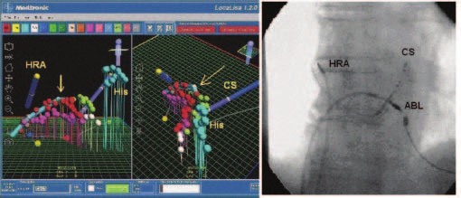 LocaLisa. Panel A: Pohľad na 3 paralelné ablačné línie (červená, fialová, zelená) v oblasti kavotrikuspidálneho istmu – virtuálny model pravej predsiene v AP projekcii (vľavo) a v LAO projekcii (vpravo). Šípky znázorňujú pozíciu ablačného katétra. Panel B: Skiaskopický obraz rovnakého pacienta v AP projekcii.