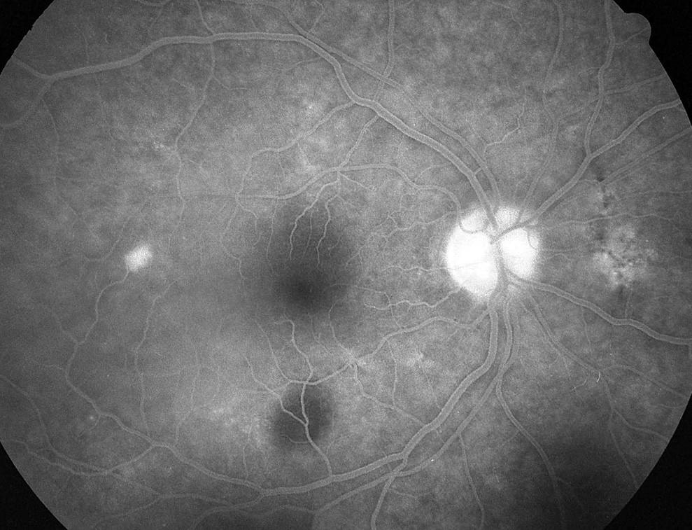 Pac. č. 3: Fluoresceínová angiografia PO: temporálne od okraja makuly sa zvýrazňuje bod presakovania s abláciou okolitého neuroepitelu retiny. Jemné poruchy RPE sú nad a pod makulou