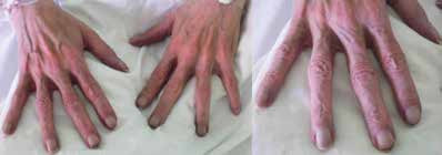 Paličkovité prsty