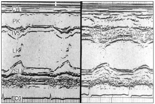 M-mode vlevo ukazuje normální levou komoru a vpravo případ aortální stenózy s těžkou koncentrickou hypertrofií a značně redukovanou rychlostí časného plnění. Dynamika plnění je podobná jako u mitrální stenózy.
