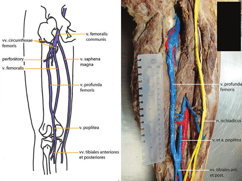 Obr. 2a,b. Regio femoris posterior, fossa poplitea – kolaterální průběh v. profunda femoris (náš pitevní nález)