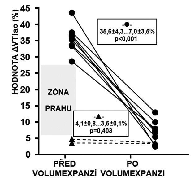 Reakce ΔVTIao na volumexpanzi