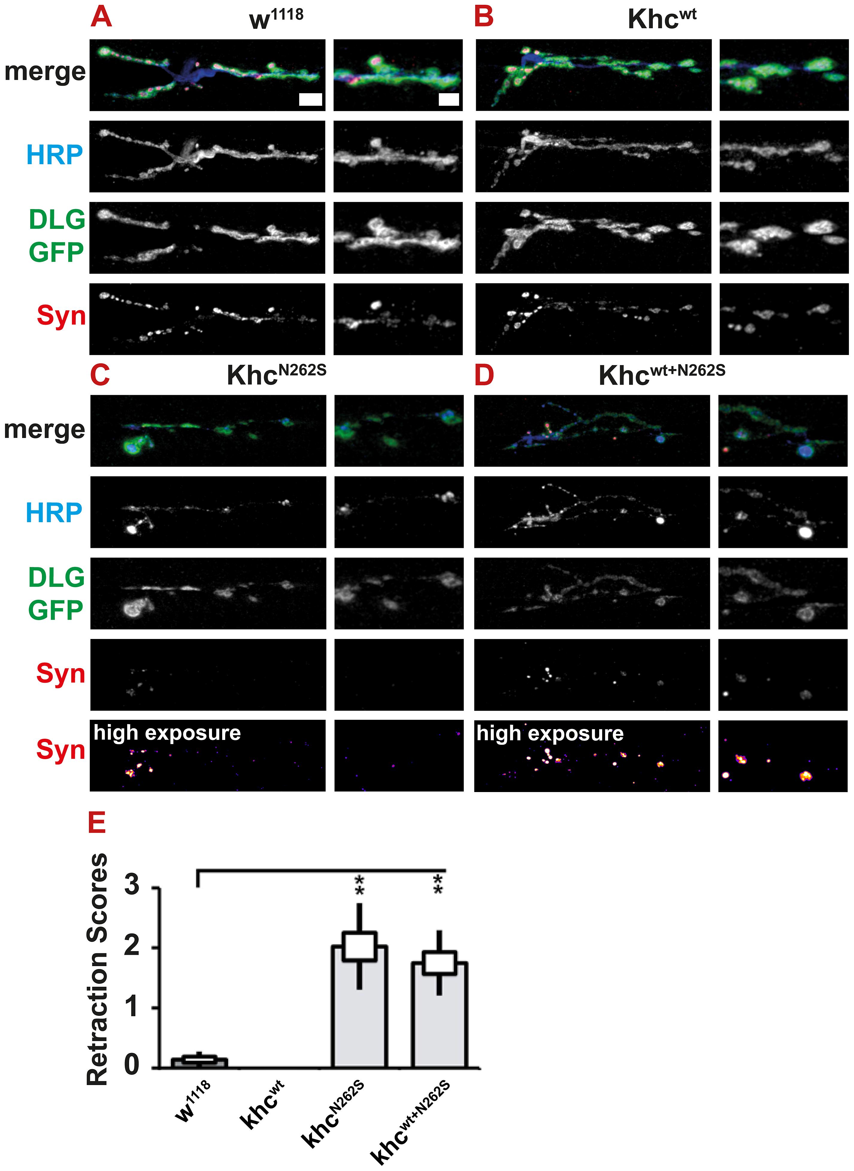 Light microscopic analysis of NMJ degeneration.