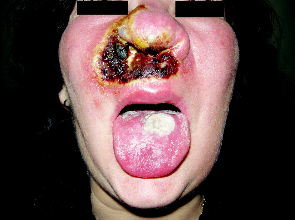 Pyoderma gangraenosum obličeje 6 týdnů po vzniku prvního defektu na tváři.