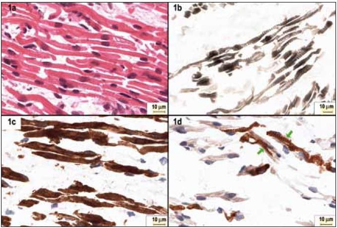 Fig. 1. Histopathological features of fetal myotubes and muscle fibers.
