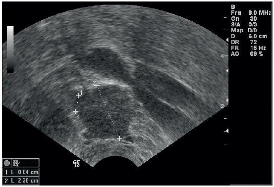 Infiltrovaná uzlina dorzálně od externích ilických cév – zakulacená, z jejího povrchu vystupují výběžky tumoru infiltrující okolní tukovou tkáň
