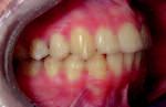 Obr. 7a. Intraorální pohled 4 roky po sejmutí pevného ortodontického aparátu.