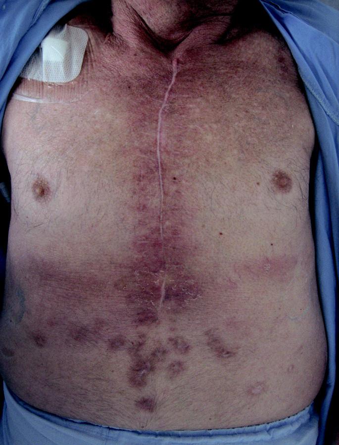 Zhojená rána 3 měsíce po operaci.