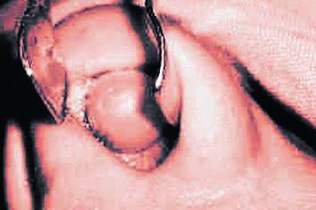 Benígny schwannóm nosovej priehradky vľavo.