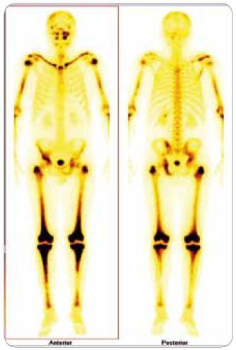 Scintigrafie skeletu: zvýšená aktivita radiofarmaka je vidět především v dlouhých kostech – oba humery ve střední třetině, v distálních částech obou femurů, v proximálních částech obou tibií, v obou klavikulách, v oblasti pánve – os ischii vlevo, os pubis vpravo, os ilium pravo, v oblasti levého SI skloubení, dále v oblasti maxily vlevo, difuzně vyšší aktivita v oblasti kalvy s ložisky vpravo parietálně a částečně frontálně bilat.