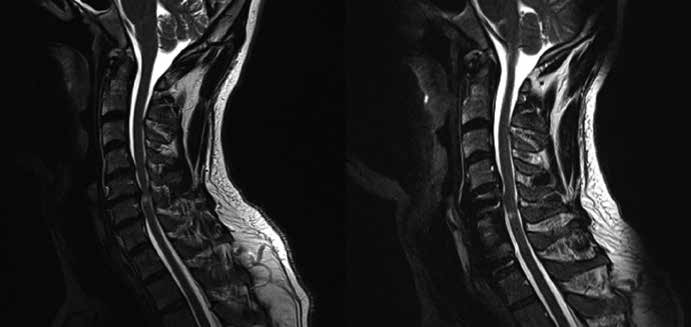 Pacient ze skupiny Aa, u kterého byla provedena somatektomie C6 s náhradou obratlového těla štěpem z lopaty kosti kyčelní, doplněna fixace Casparovou dlahou C5−C7. Předoperační MR a pooperační MR s odstupem dvou let (K2).