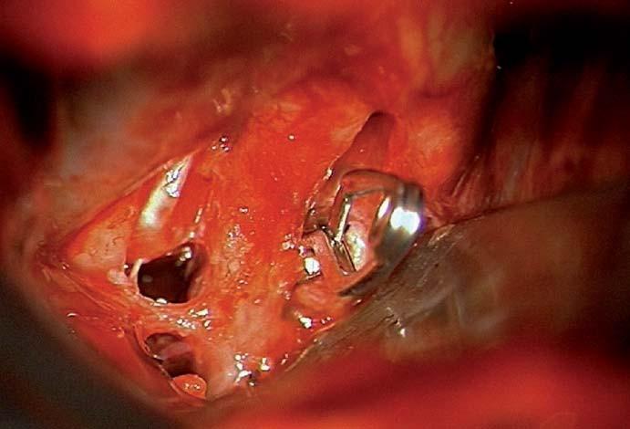 Zasvorkované aneuryzma.