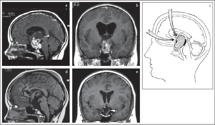 Intra-extraventrikulárny kraniofaryngeóm u 12-ročného chlapca (a, b).