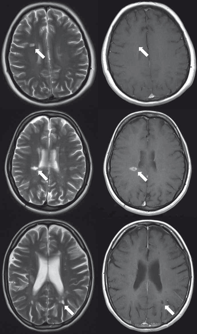 Fig. 1. Sample of NEL, EL and PBH lesions on T2WI. All lesions on T2WI (left) were selectedy according to post-contrast corresponding (right) to NEL (A), EL (B) and PBH (C).