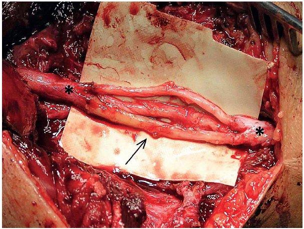 Rekonstrukce n. radialis (proximální a distální pahýl označen hvězdičkou) v oblasti paže pomocí 3 nervových štěpů z n. suralis (šipka) délky 3,5 cm.