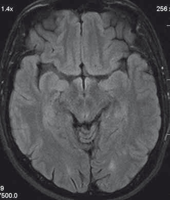 Patient´s head MRI. A T2 hyperintensive demyelinating lesion in the left occcipitally lobe.