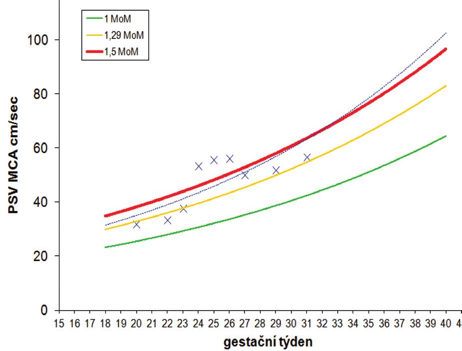 Graf 3 a 4 Série dopplerometrických měření MCA PSV u případu incipientní postlaserové formy TAPS se spontánní úpravou ve 27. týdnu těhotenství (případ C)