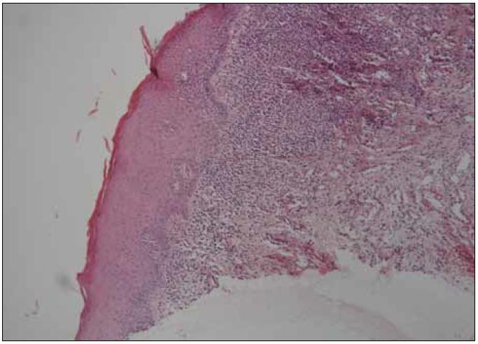 Histologický nález kompatibilní s diagnózou orální lichen planus (kazuistika 1).