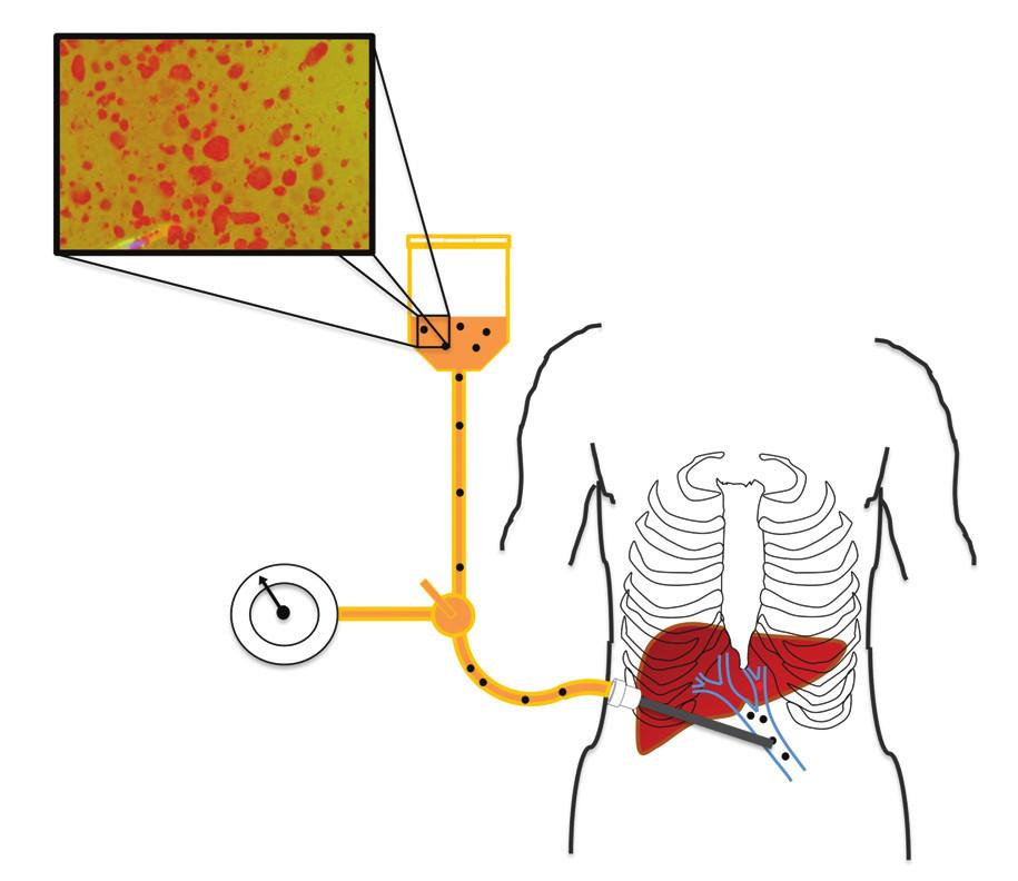 Schéma transplantace izolovaných Langerhansových ostrůvků