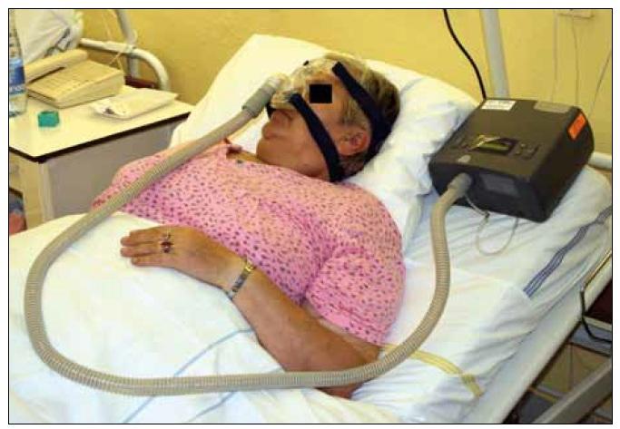 Pacientka – léčena CPAP (Continouous Positive Airway Pressure) s nosní maskou.