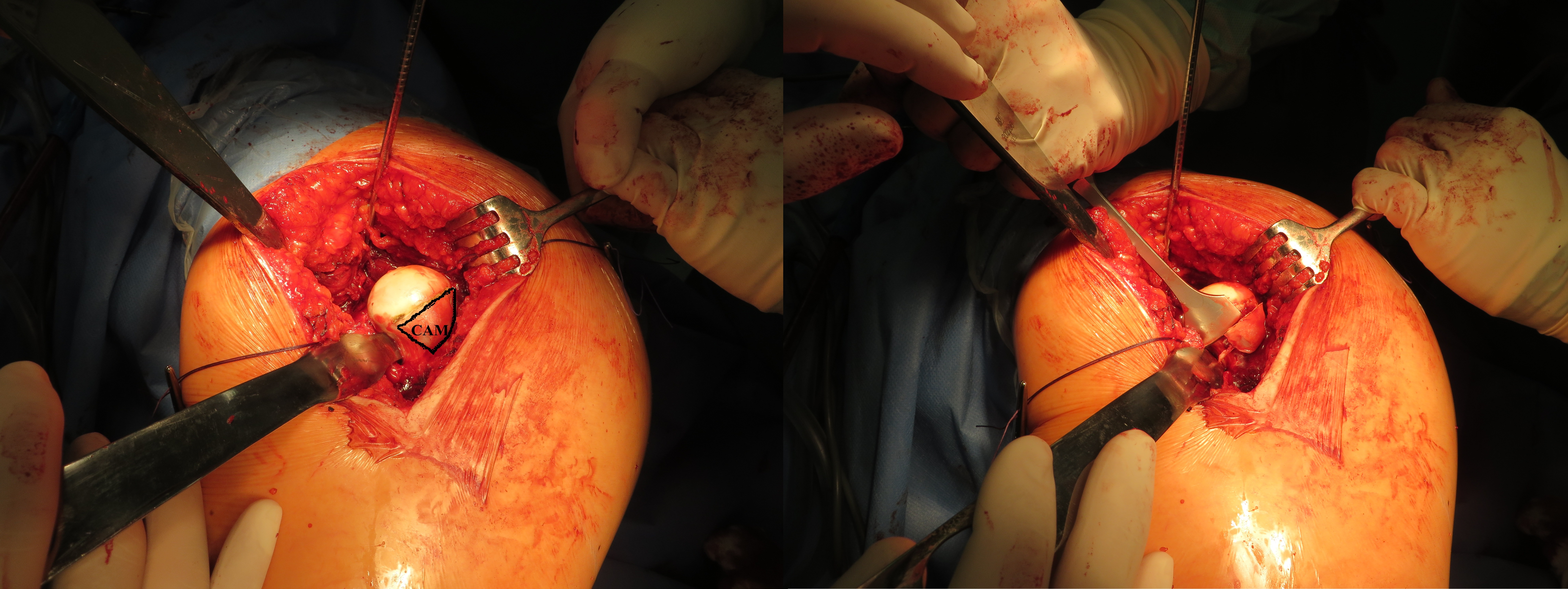 Anatomické ošetření hlavice stehenní kosti