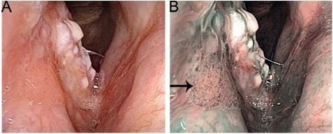 Karcinom pravé hlasivky v bílém světle (A) a NBI (B). V NBI módu je jasně patrné šíření tumoru na pravou vestibulární řasu (označeno šipkou).