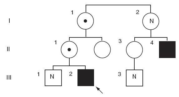 Rodokmen chlapce s X-vázanou ichtyózou. Černě označen nositel delece v hemizygotní formě, s černou tečkou heterozygotní přenašečky, bez označení zdravý jedinec,N – nevyšetřeno, šipkou označen proband.