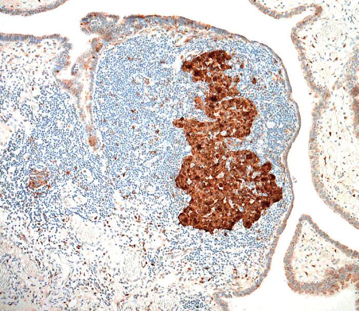 Difuzní silná jaderná a cytoplazmatická exprese proteinu p16INK4a v nádorových buňkách, v tomto případě bez vztahu k infekci lidskými papilomaviry (HPV) (původní zvětšení 100×)