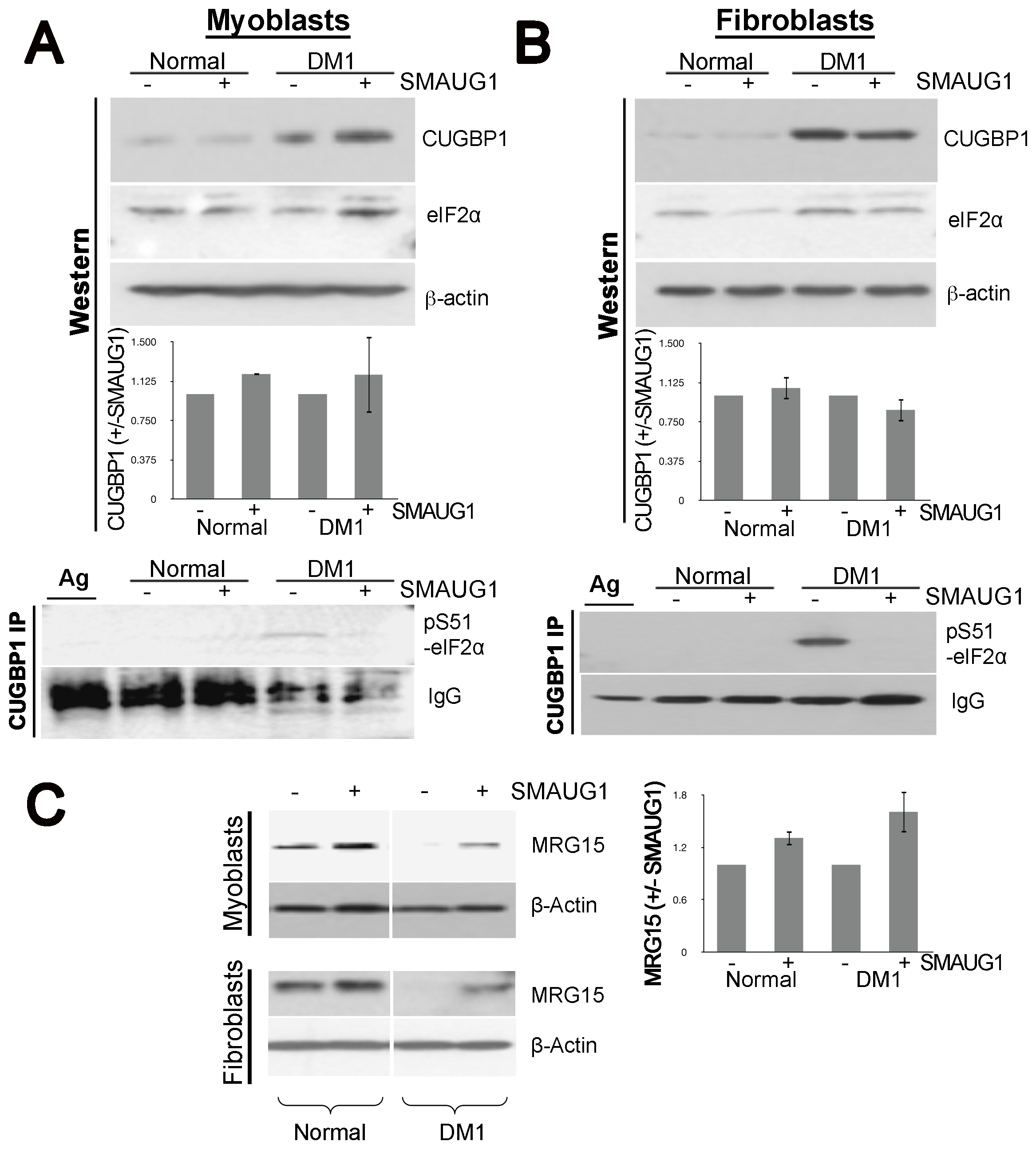 SMAUG1 reduces inactive CUGBP1/pS51-eIF2α translational complexes and recuperates normal levels of MRG15 protein in DM1 myoblasts and fibroblasts.