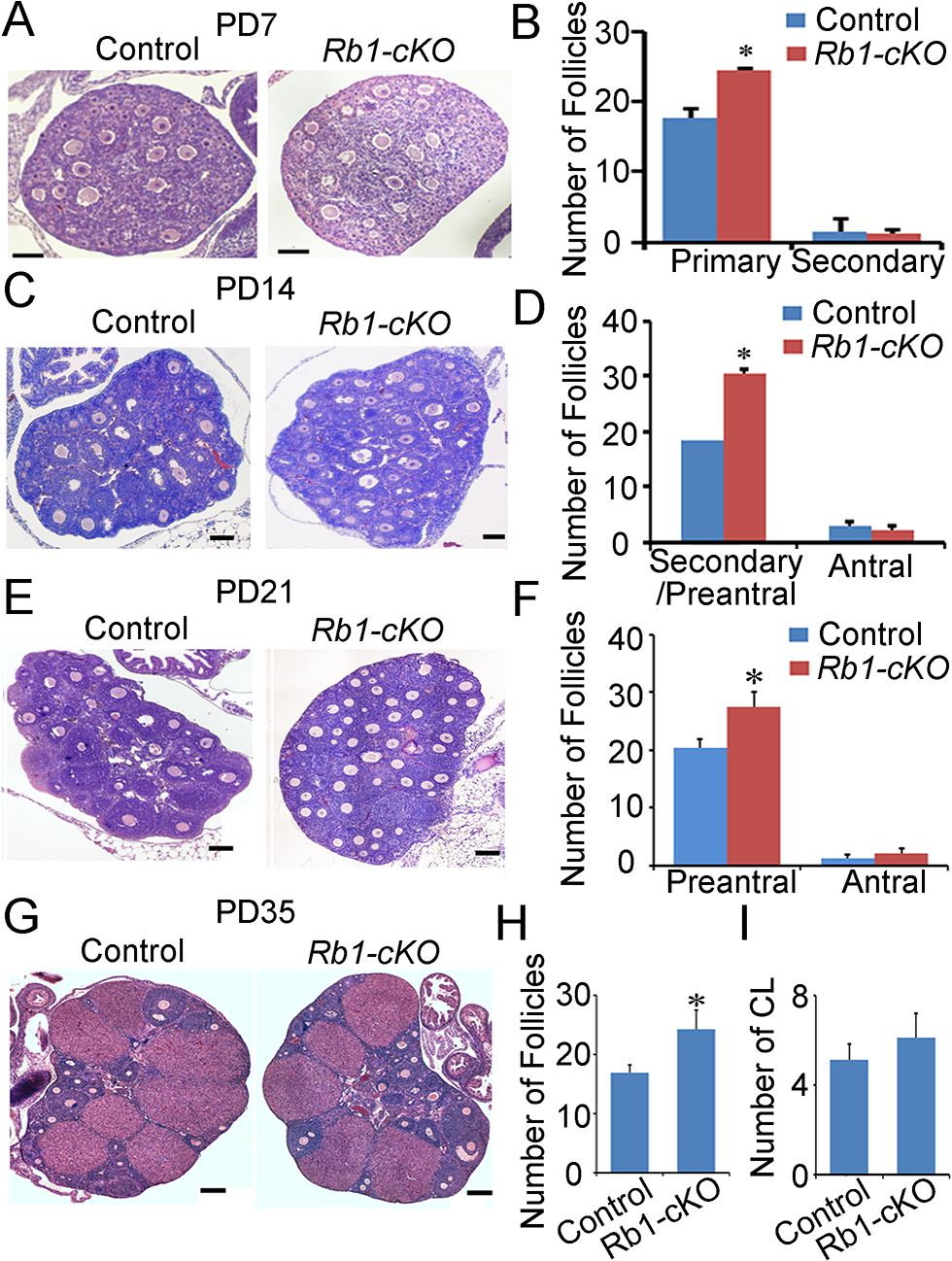 Aberrant follicle development in mice with conditional <i>Rb1</i> inactivation in oocytes.