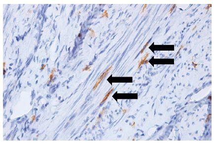 Telocyty (šípky) medzi hladkými svalovými bunkami myometria maternice (anti-CD117, vizualizované diaminobenzidínom do hneda, orig. zväčšenie 400x)