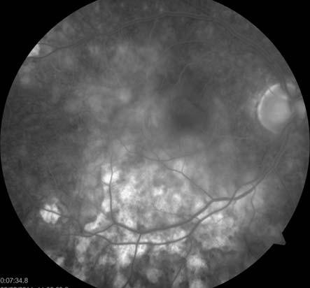 FAG oka pravého. Splývající hyperfluorescence aktivních ložisek, hyperfluorescence window defektů RPE v místě již neaktivních pozánětlivých lézí.