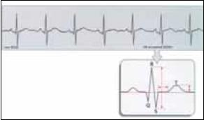 Schéma vytvoření průměrné vlny T a poměru T/QRS.