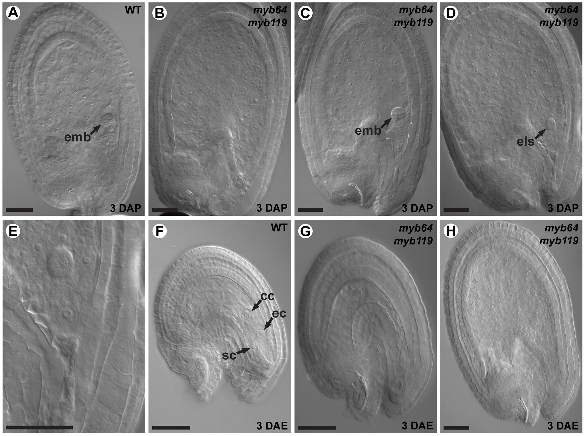 <i>myb64 myb119</i> gametophytes initiate autonomous endosperm development.