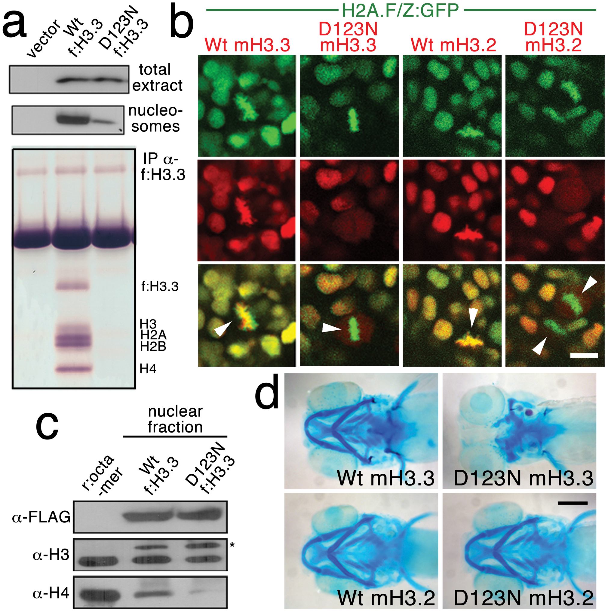 The dominant D123N mutation prevents chromatin incorporation and promotes the formation of aberrant H3 homodimers.