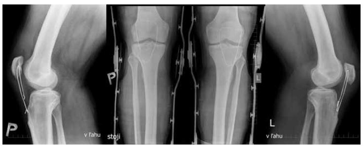 Predozadné a bočné projekcie oboch kolien 2 týždne po operácii Rozvlečenie serklážnej slučky pravého kolena - patella alta (Insall-Salvati ratio=1,38). Ľavé koleno - patela vo vyhovujúcom postavení (Insall-Salvati ratio=1,056).<br> Fig. 2: Anteroposterior and lateral views of both knees two weeks after surgery Unravelled wire on the right knee – patella alta (Insall-Salvati ratio=1.38). Left knee – correct patellar position (Insall-Salvati ratio=1.056).