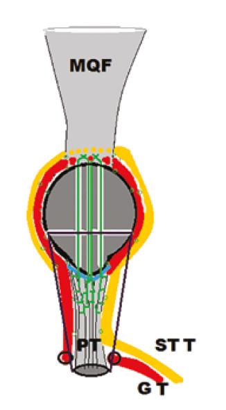 Schématické znázornenie revíznej operácie pre   re-ruptúru <i>ligamentum patellae</i> s augmentáciou šľachami   <i>musculus semitendinosus</i>   (STT − žltá) a <i>musculus gracilis</i> (GT − červená). Transoseálna reinzercia (zelená) ruptúry (modrá).<br>   Fig. 3: Schematic illustration of the revision surgery for patellar tendon re-rupture, using semitendinosus   (STT − yellow) and gracilis muscle (GT − red) augmentation. Transosseous suture (green) of the patellar ligament rupture (blue).